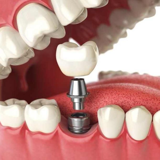 Necesidad de los implantes dentales, por funcionalidad y estética