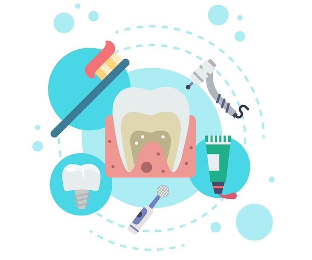 ¿Cómo debes cuidar tus implantes dentales?