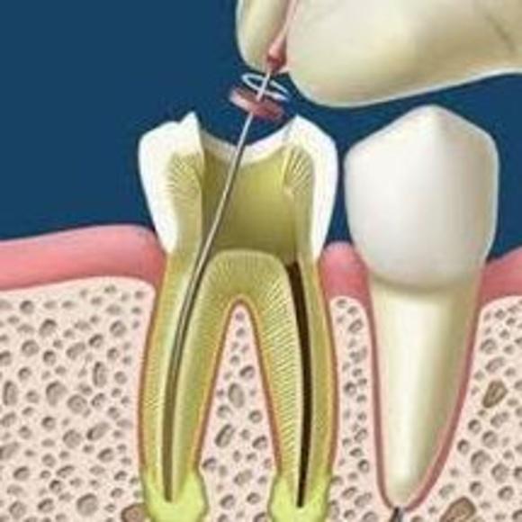 Endodoncias: Servicios  de Centro Dental Bizkai-Dent