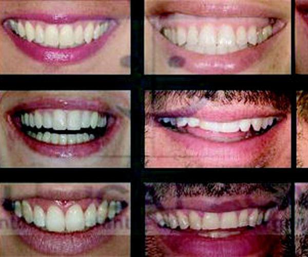 Dentistas en Vigo | Clínica Facal