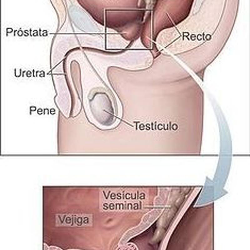 Análisis de próstata Pamplona