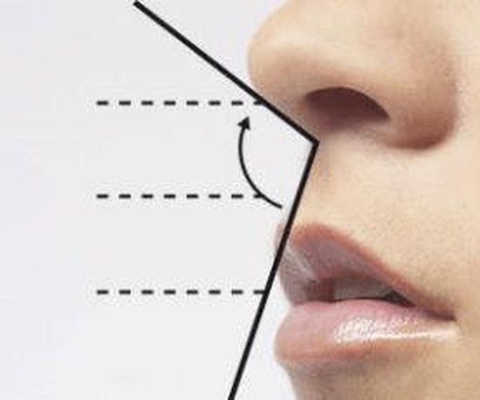 Rinoplastia sin cirugía: Servicios de Clínica Vicario