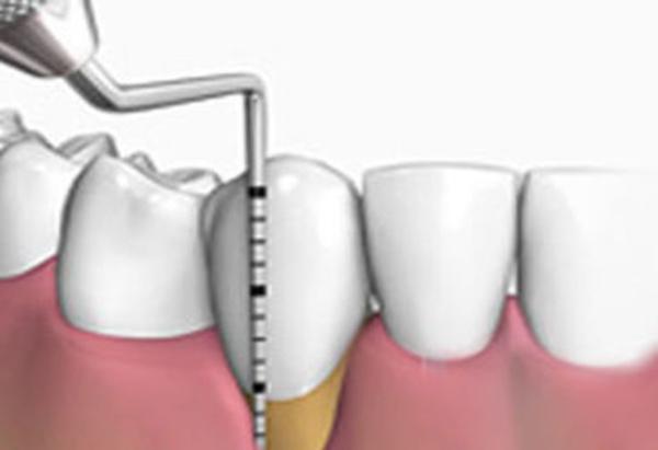 Periodoncia: Catálogo de Clinica Dental Zamalloa