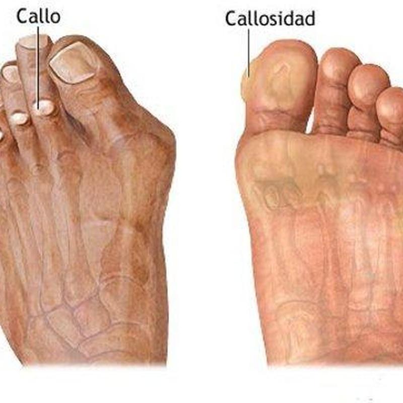 Callosidades: Catálogo de Podocoslada Centro Podológico