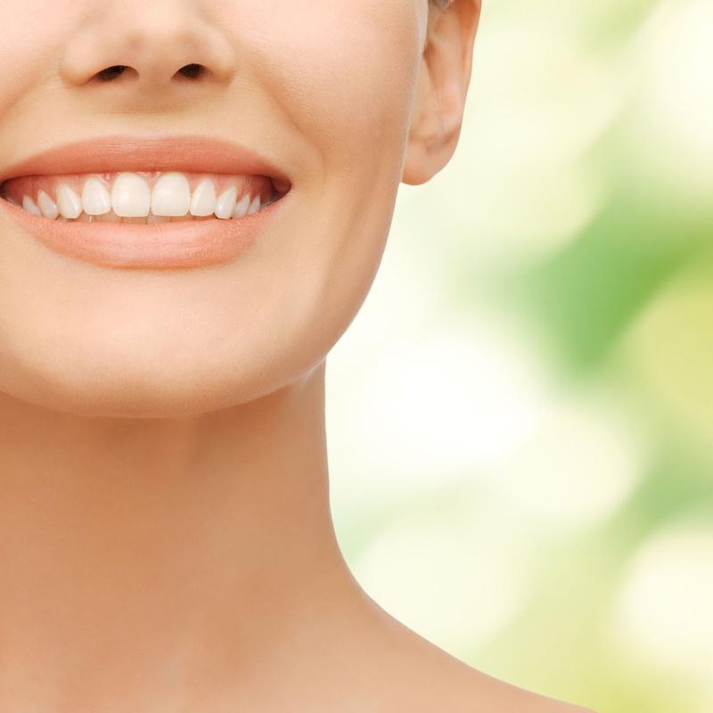 Blanqueamiento dental: Servicios de Vila Dental Dra. Sonia Molina