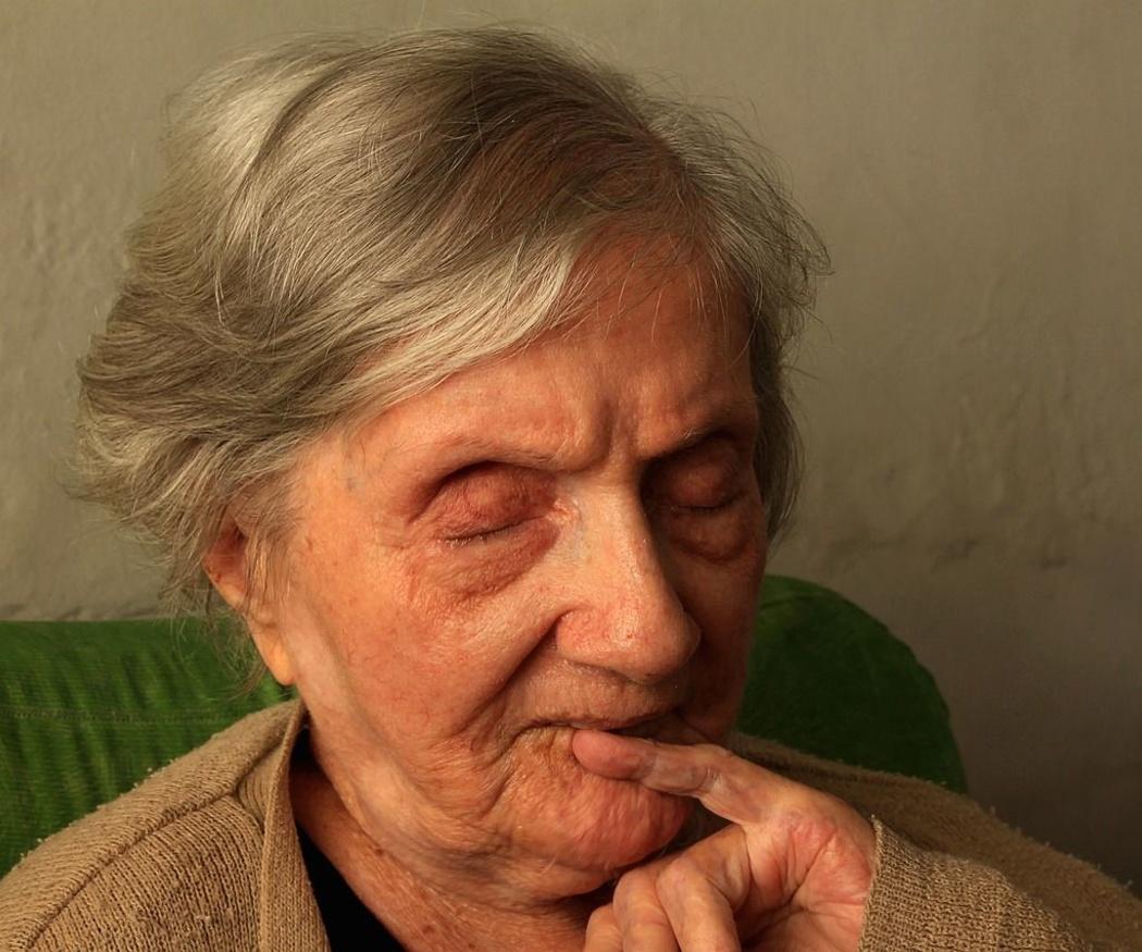 ¿Qué cuidados necesitan las enfermos con Alzheimer?