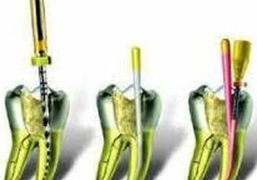 Re-endodoncia