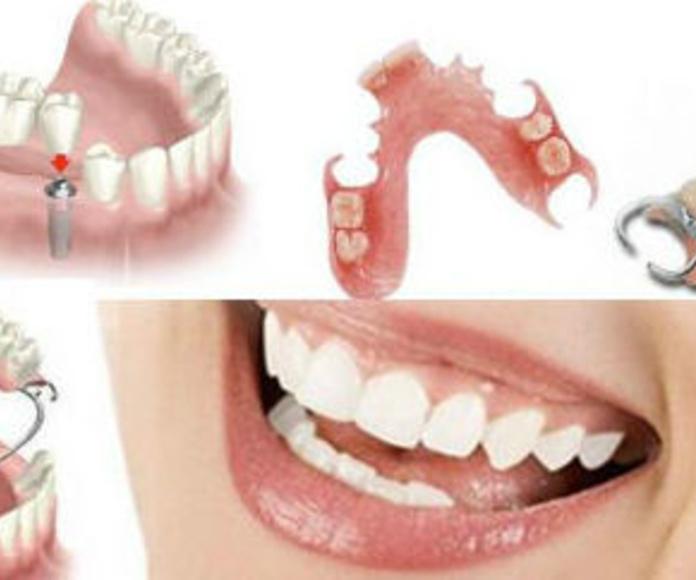 Dentista Sotillo de la Adrada