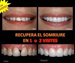 Recupera el somriure en 1 o 2 visitas· Clíncia Dental Tàrrega-Gguissona té la exclusivitat