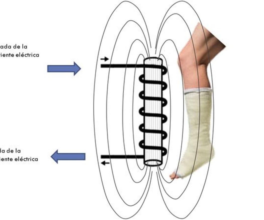 Qué es y cómo actúa la magnetoterapia