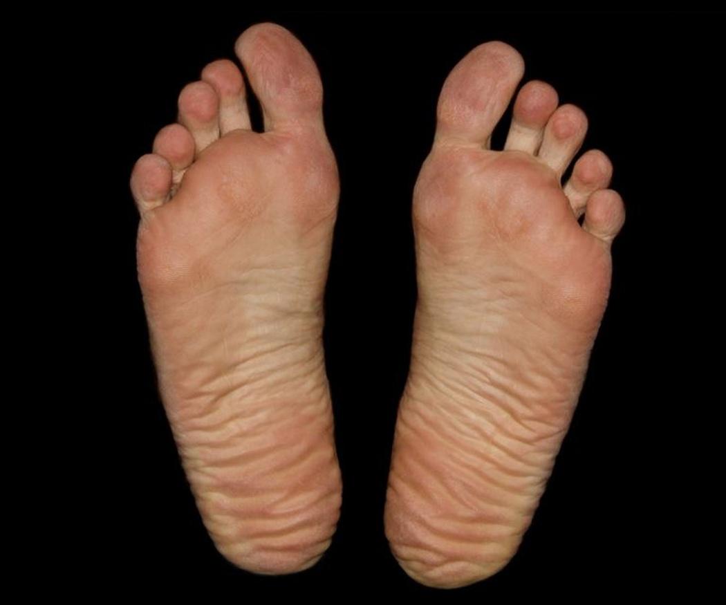 El pie de atleta