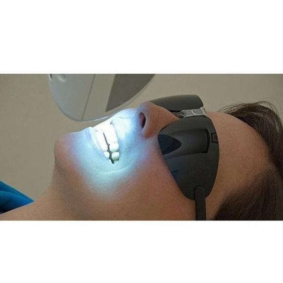 Blanqueamiento dental  : Servicios de Clínica Dental Dra. Belkys Hernández Cabrera