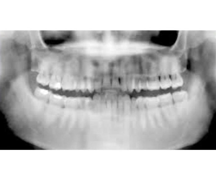 Radiografías: Tratamientos de Urgencias dentales Clínica  Ángel Samaniego