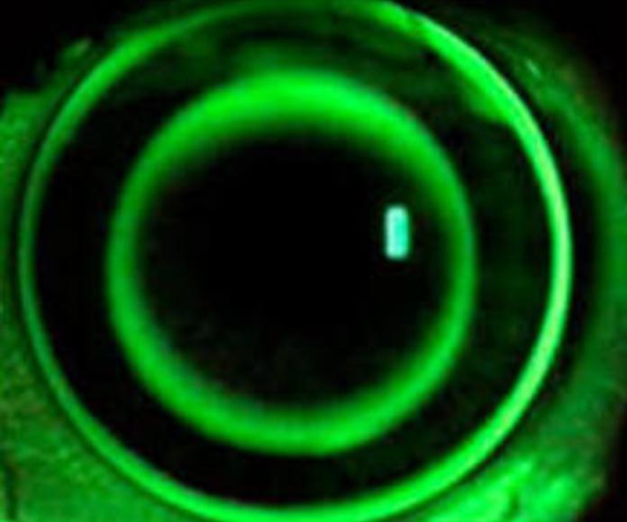 Lentes de contacto gas permeables: CATÁLOGO de Centro Óptico Villasan