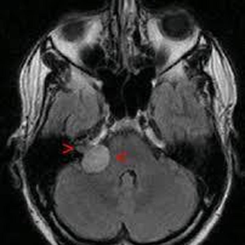 Neurinomas del acústico : Especialidades y publicaciones de Doctor Villarejo
