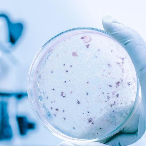 Legionella treatments in Ibiza