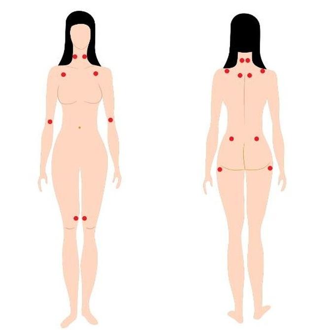 Puntos dolorosos de la fibromialgia