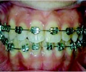 Galería de Dentistas en Chiclana de la Frontera   Clínica de Ortodoncia Dr. Martínez Mariscal