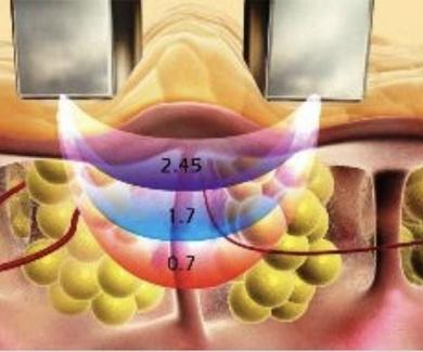 Radiofrecuencia facial y corporal