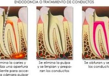 Endodóncia o tratamiento de conductos