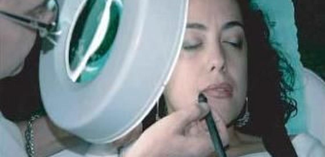 Depilación eléctrica facial en Valencia