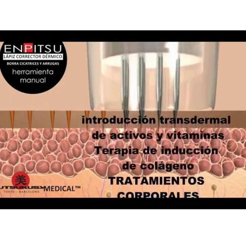 Nuevos tratamientos: Servicios de Centro de estética Mímate