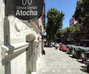 implantología dental Madrid Centro   Clínica Dental Atocha