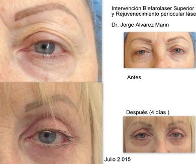 BLEFAROPLASTIA CON LASER Antes y Despues paciente Agosto 2.015