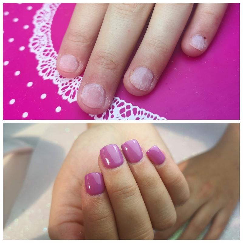 Reconstrucción de uñas mordidas: Servicios de Cristina Nails