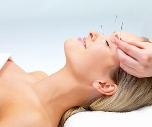 Lifting facial con acupuntura