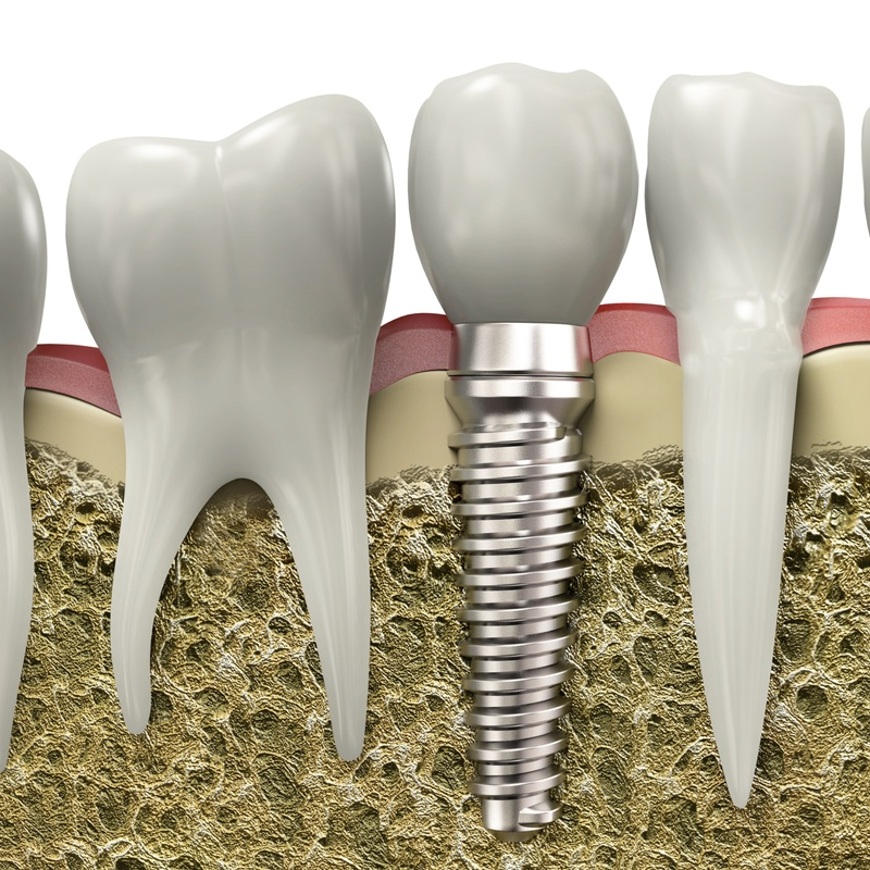Implantes: Servicios  de Clínica Dental Cadillon