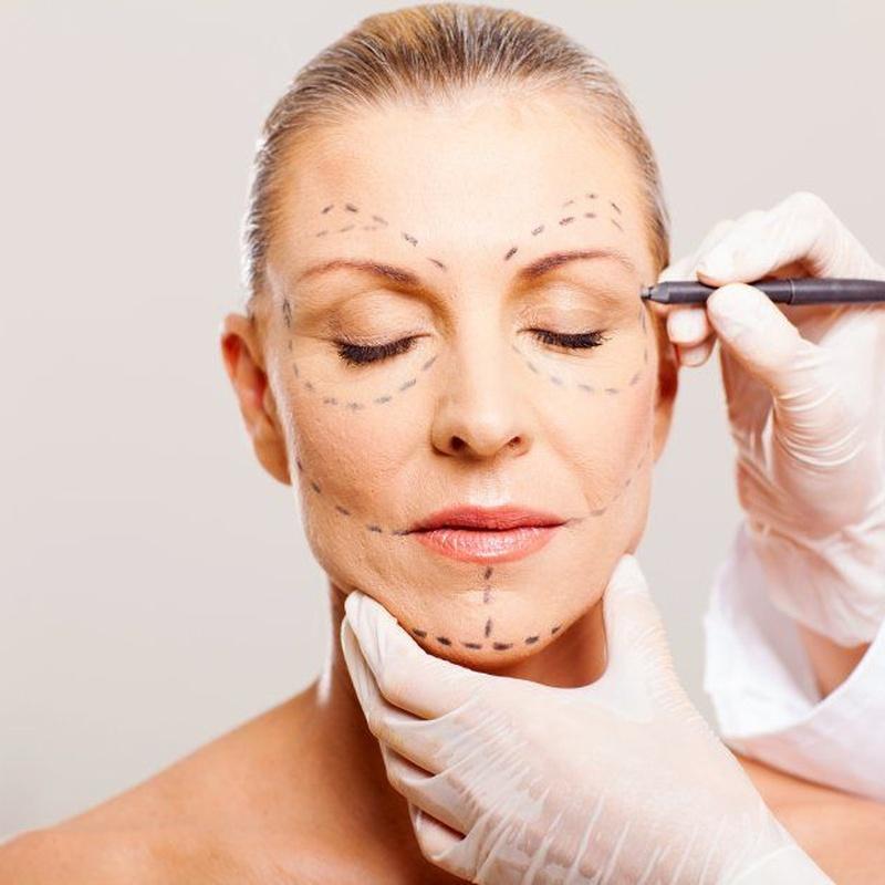 Lifting Facial: Cirugías de Vicente García Morato Jorreto