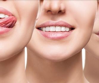 Prótesis: Catálogo de Clínica Dental Mª Teresa Garrido