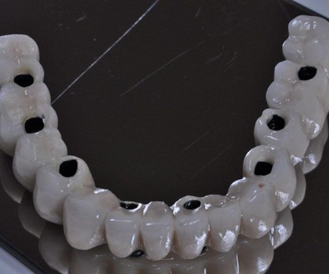 Cómo es un tratamiento con implantes dentales