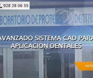 Prótesis dentales fijas en Las Palmas de Gran Canaria