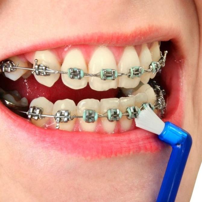 Una higiene para cada tipo de ortodoncia