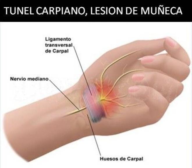 Tratamiento tunel carpiano,lesiones de muñeca,perdida de fuerza