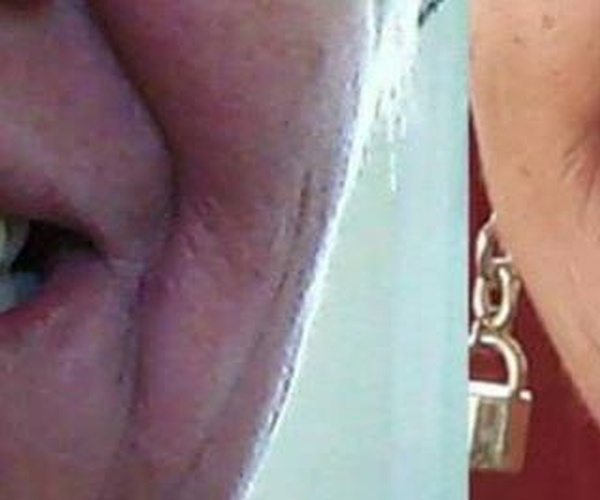 Estética dental en  DentiVita