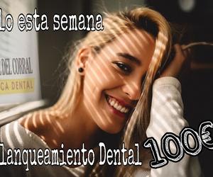 Blanqueamiento dentales en Hortaleza