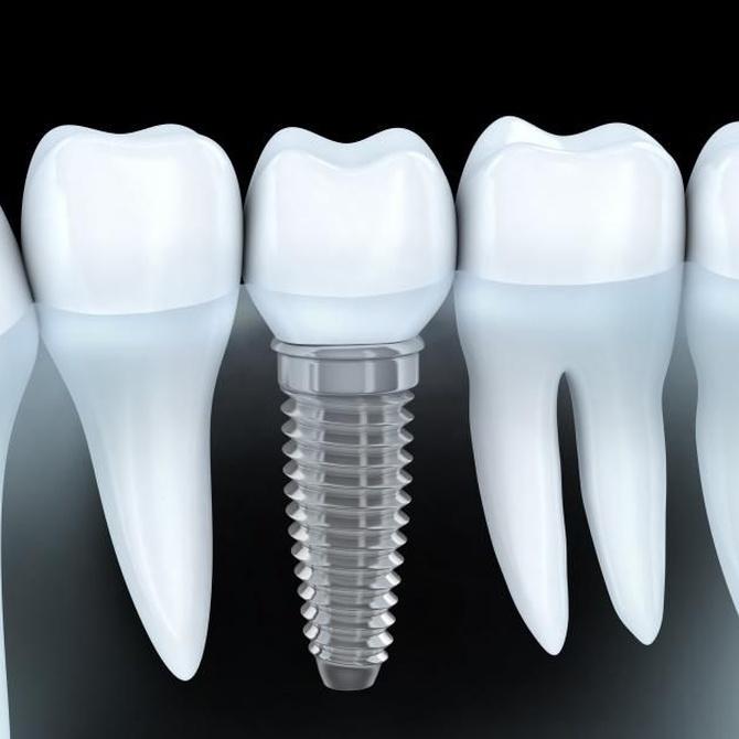 Cuándo son recomendables los implantes dentales