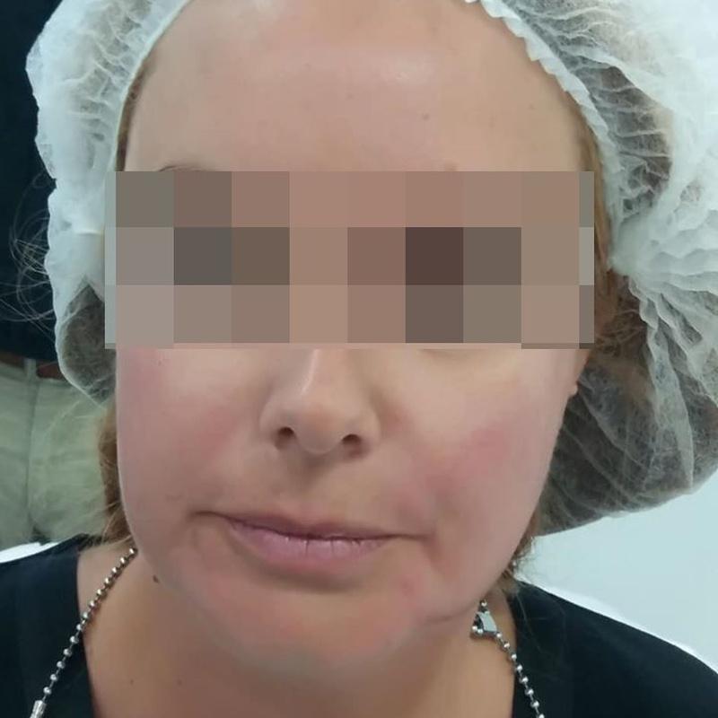 Toxina botulínica (bótox): Nuestros tratamientos de Clínica  Doctor Pérez de León