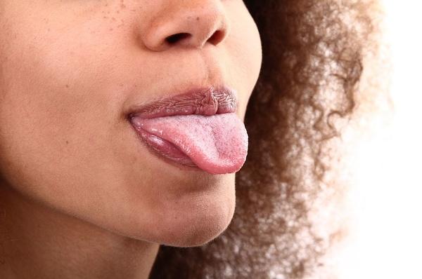 ¿Tienes la lengua blanca y no sabes por qué?