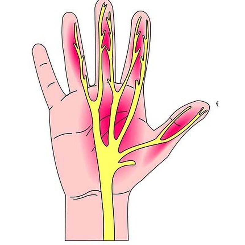 Hormigueo de manos : Síntomas y Problemas de Quiropràctic Manresa