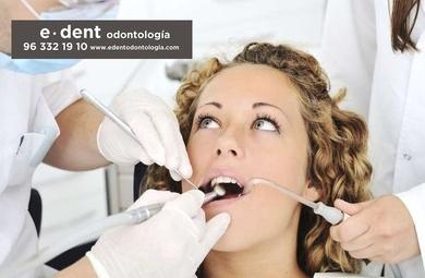 ¿Sabías que los adultos también pueden tener dientes de leche?