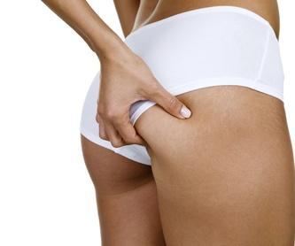 Flacidez corporal: Tratamientos de Clínica Asuar Olivares