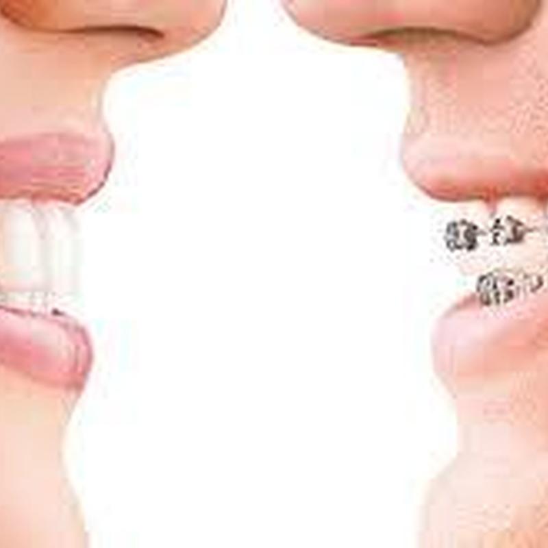Ortodoncia: Servicios de Clínica Dental Dra. Charo Díez