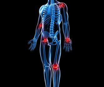 Osteopatía : Servicios de Fisio Innova Plus