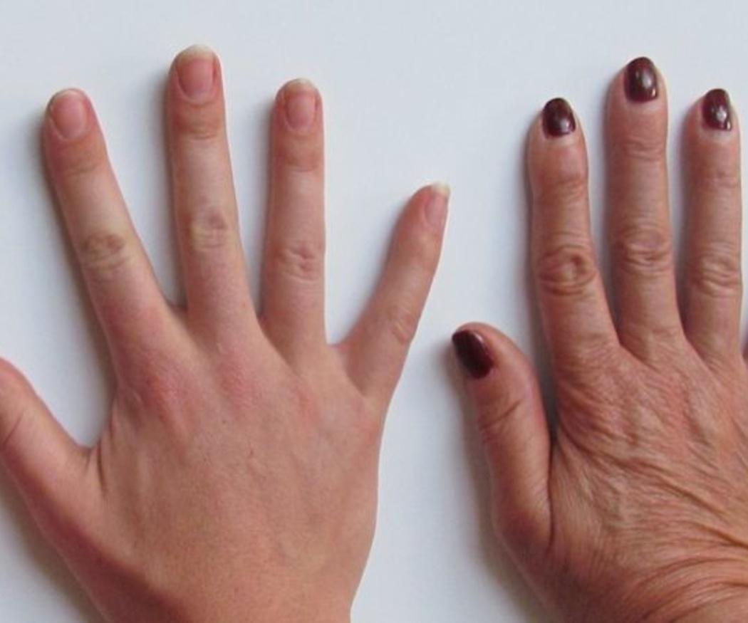 ¿Por qué no deberíamos mordernos las uñas?