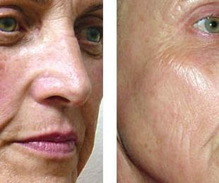SR AFT: Fotorrejuvenecimiento de la piel