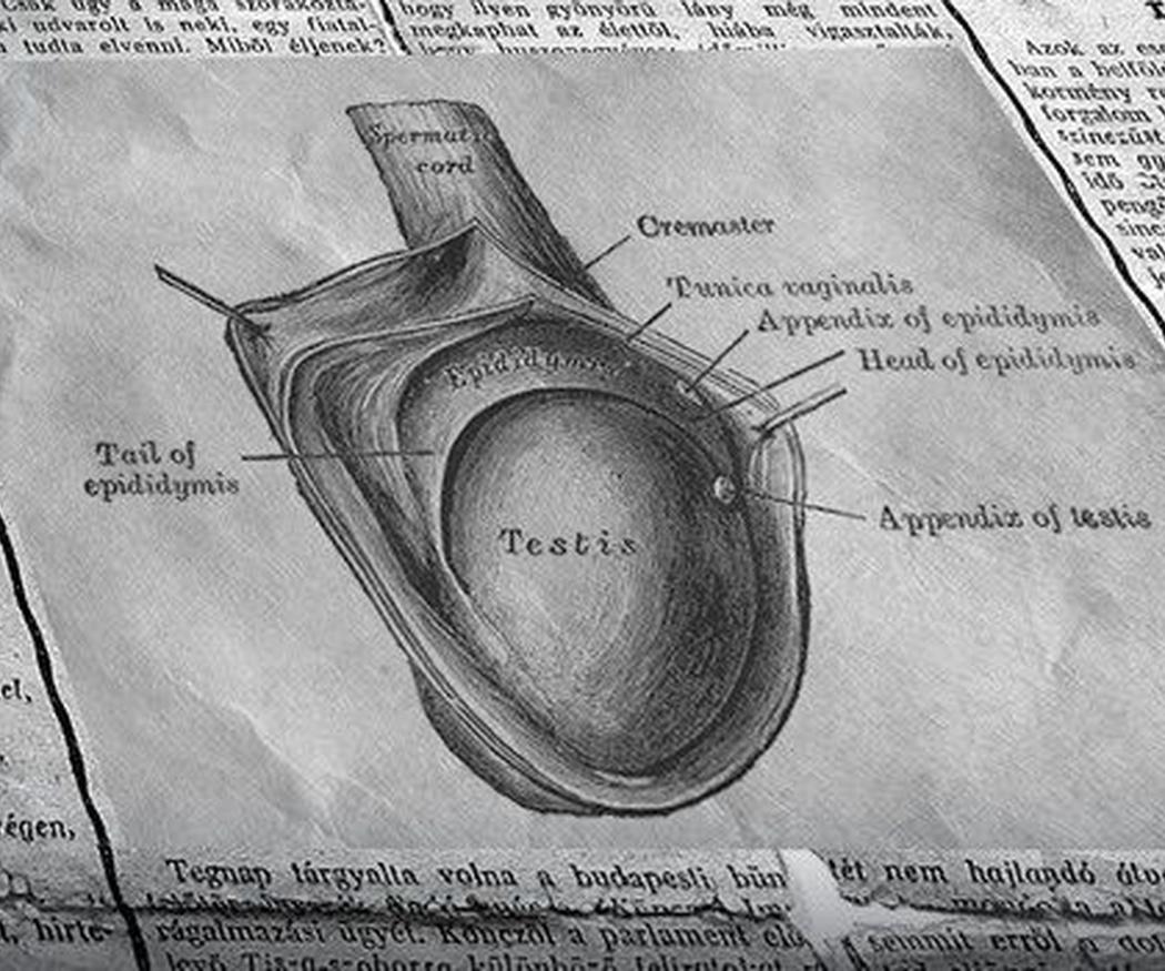 ¿Qué es la varicocele testicular?